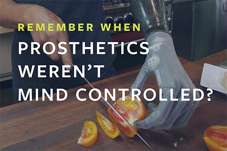 Remember when prosthetics weren't mind controlled?