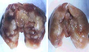 Mouse lungs infected by 2 different TB strains