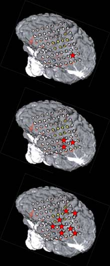 Diagrams comparing high-gamma activity in the brain in response to different sounds