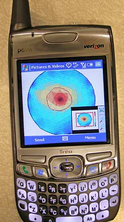 image of a simulated breast tumor on a cellphone