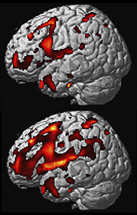 MRI scans of FTLD brain