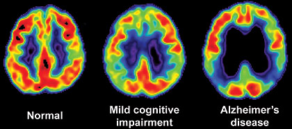PET scans of normal, impaired and Alzheimer's brains