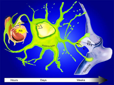 Diagram of neural damage from brain injury