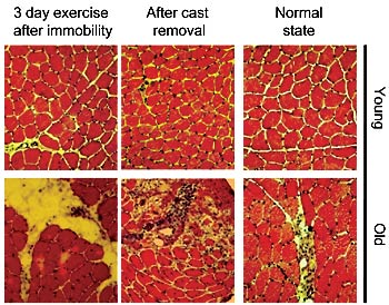 09.30.2009 - scientists discover clues to what makes human muscle age, Muscles