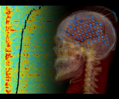 brain xray and scan depicting activity in auditory cortex