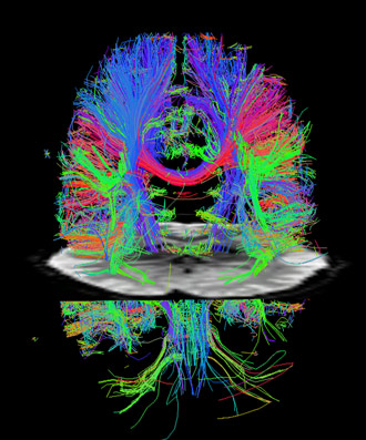 diffusion MRI showing major nerve cell axons
