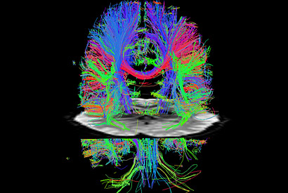 Advance makes MRI scans more than seven times faster