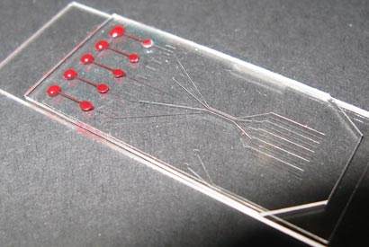 New blood analysis chip could lead to disease diagnosis in minutes