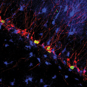Activated nerve cells in the hippocampus.