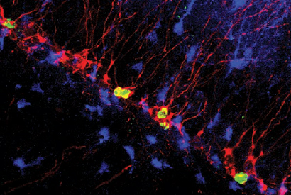 New neurons help us to remember fear