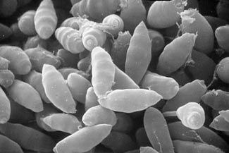 scanning electron micrograph of cypress pathogen