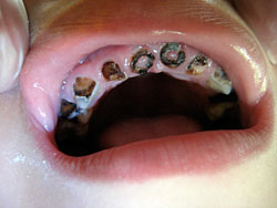 Child's teeth, rotted to the gum