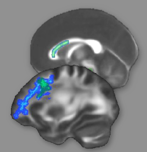 The green and blue areas indicate regions of white matter that changed as a result of intense reasoning training.