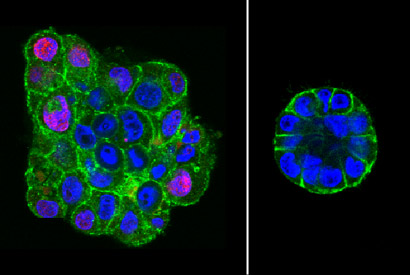 To revert breast cancer cells, give them the squeeze | Berkeley News